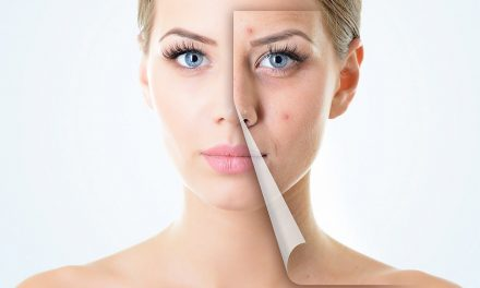 Best Anti Aging Products – An Overview